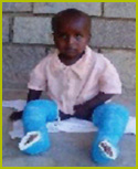 CURE launches clubfoot eradication project