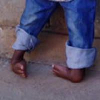 CURE sees wonderful response to clubfoot program