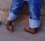 CURE sees wonderful response to clubfoot program