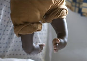 Clubfoot therapy points people to Christ