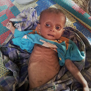 The Rohingya suffer Ethiopian-like starvation