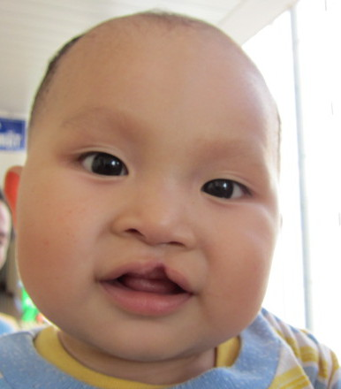 Physician speaks on adoption of China's special needs children