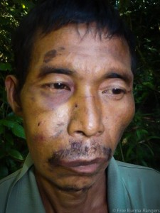 54-year-old N'Dau Gru, of Nam Gau village in Kachin State, was tortured and beaten by Burma Army soldiers. (Image, caption courtesy Free Burma Rangers)