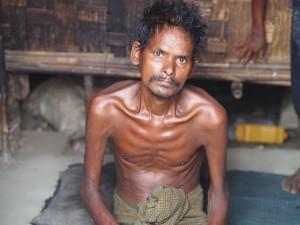 Rohingya starvation