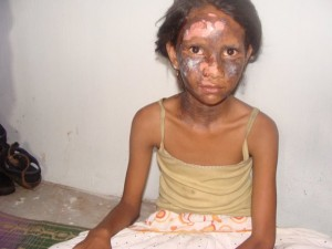 A Christian girl who was bruised and burnt during the Orissa violence in August 2008. This girl was injured with burns bruises during anti Christian violence by Hindu nationalists. It occured when a bomb was thrown into her house by extremists. (Image, caption courtesy All India Christian Council)