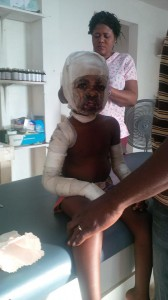 For Haiti has the unique opportunity of ministering to burn victims. (Photo courtesy of For Haiti)