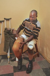 VOM prosthetics