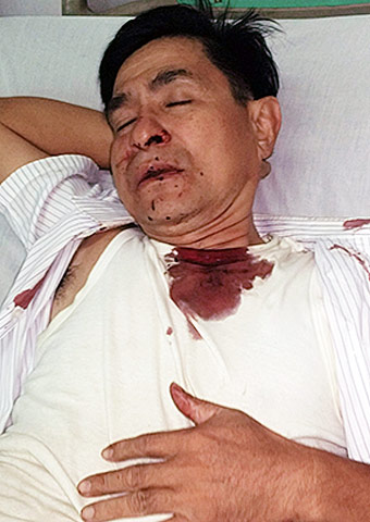 Two pastors attacked