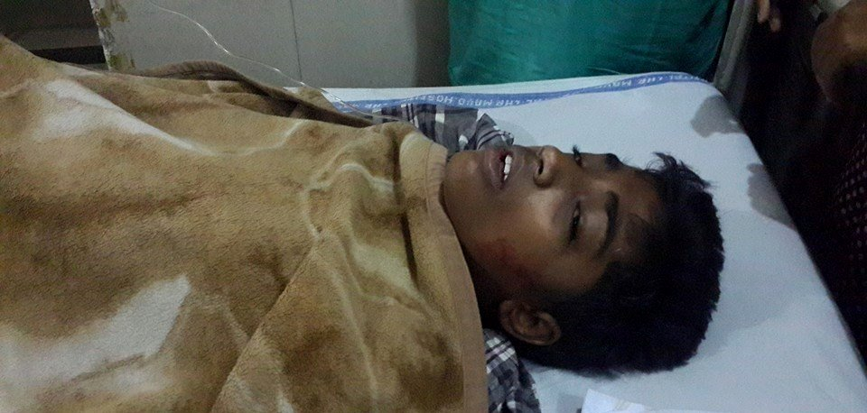 Update: Pakistani Christian boy dies from burns