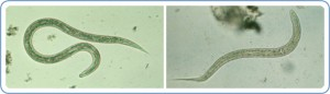 Hookworm infection is transmitted primarily by walking barefoot on contaminated soil. (Photo, caption credit: CDC)
