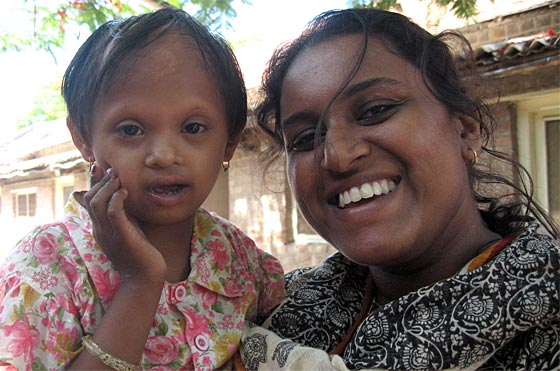 Girls with disabilities face hardship in India