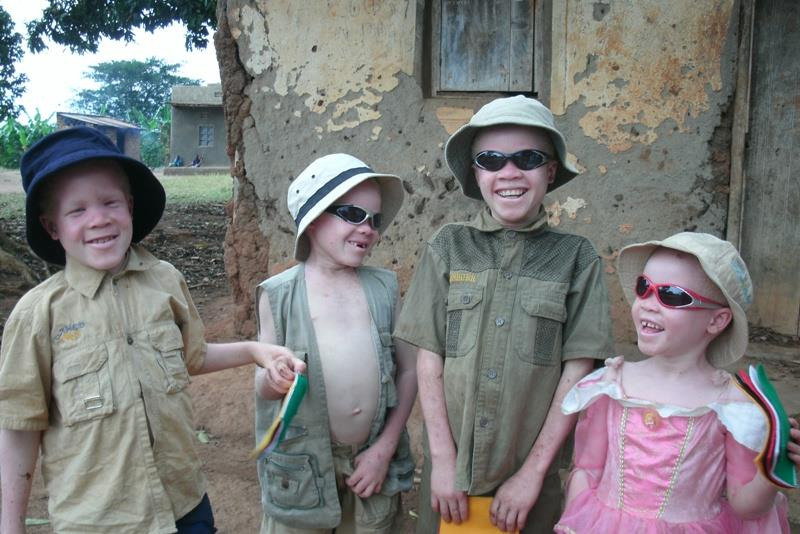Albinism: a 'curse' turned blessing