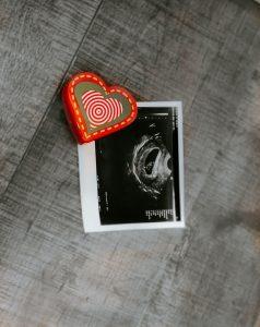 pregnancy, pregnant, baby, ultrasound, heart